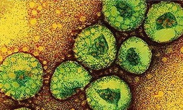 โรคติดเชื้อไวรัสเมอร์ส