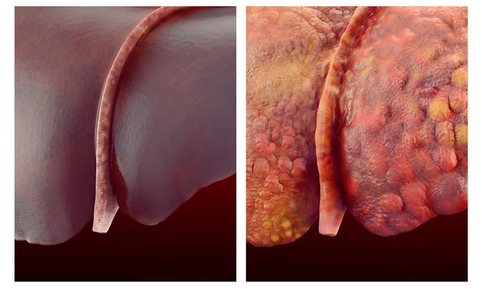 virus-liver-1